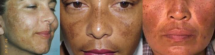 brown spots treatment