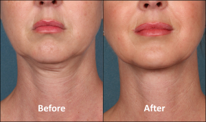 Kybella injectable treatment for double chin available at COsmetique