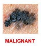 Spotting Melanoma Early - When to Get that Mole Checked Out by a Dermatologist Manhattan & Long Island New York | Cosmetique MD 2