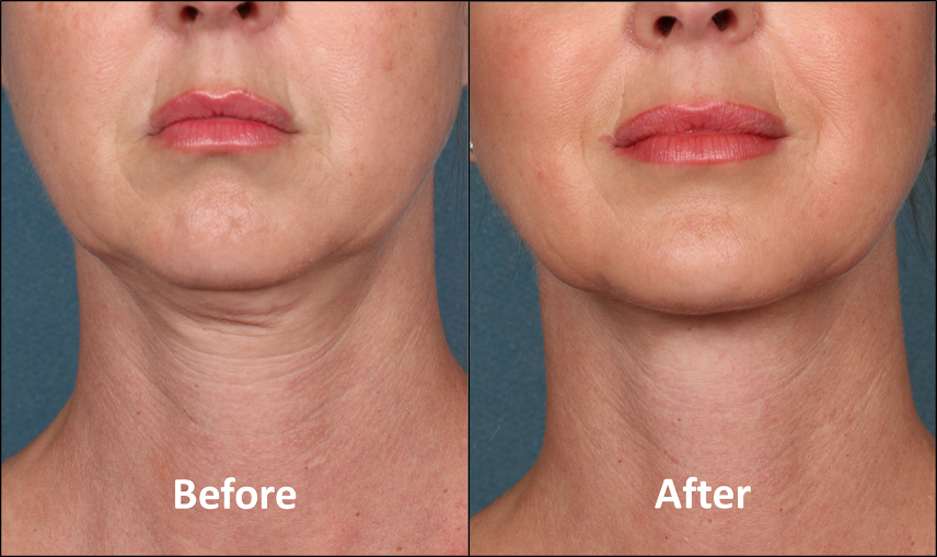 How to Get Rid of a Double Chin without Surgery